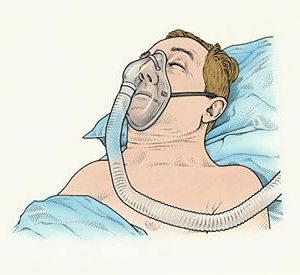best obstructive sleep apnea syndrome