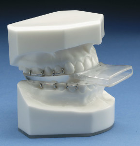 durable sleep apnea mouth guard
