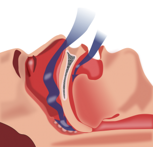 know what is obstructive sleep apnea
