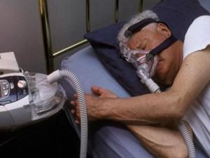 what are the sleep apnea causes